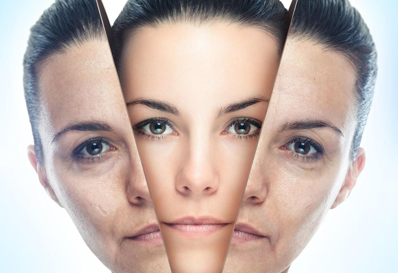 Плазменное омоложение кожи лица
